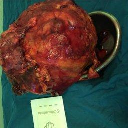 سرطان کلیه