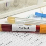 psa در سرطان پروستات