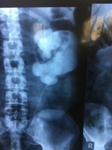 عمل جراحی پیلوپلاستی لاپاراسکوپیک