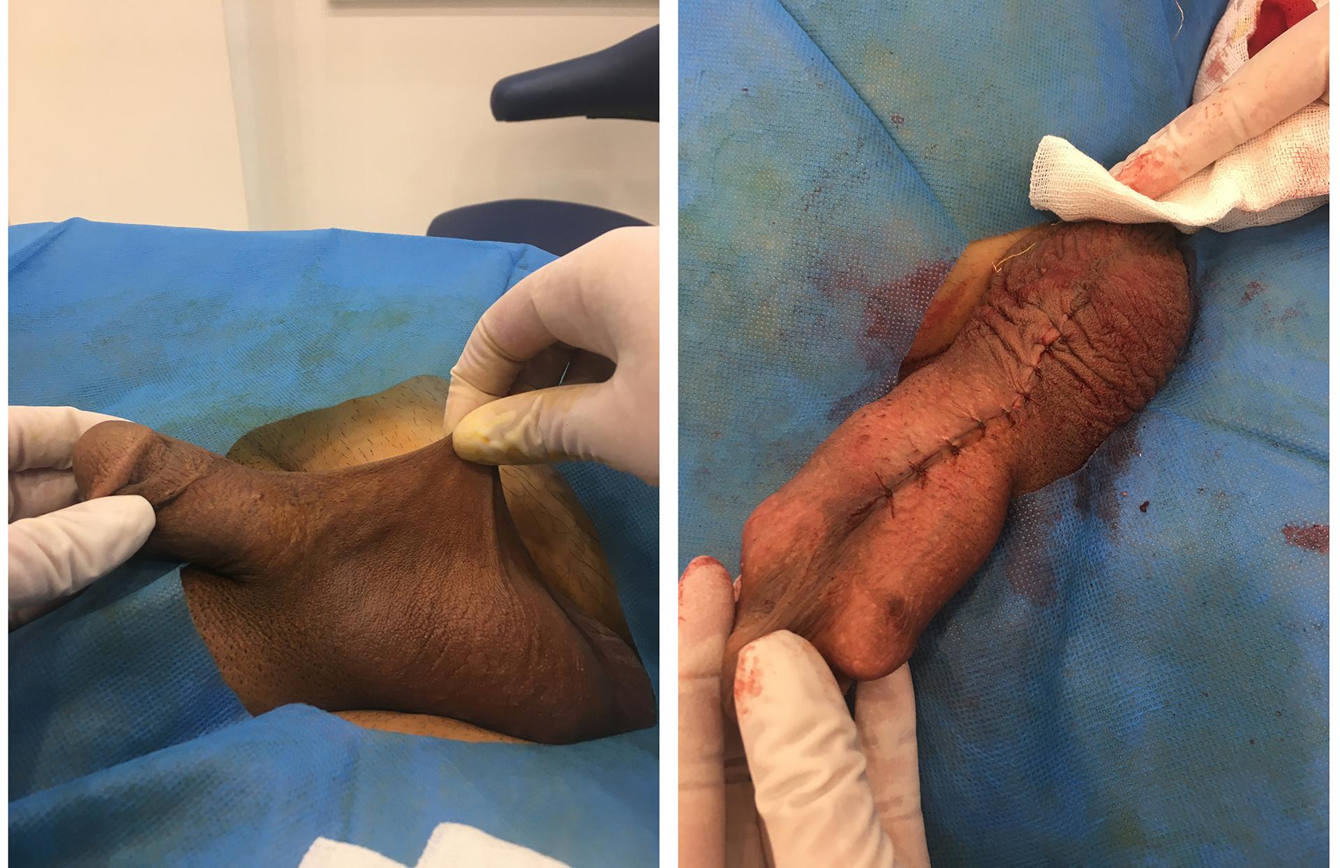 جراحی برداشت پرده آلت